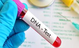 Xét nghiệm ADN ở đâu tại Tp HCM? | DNA Medical Technology