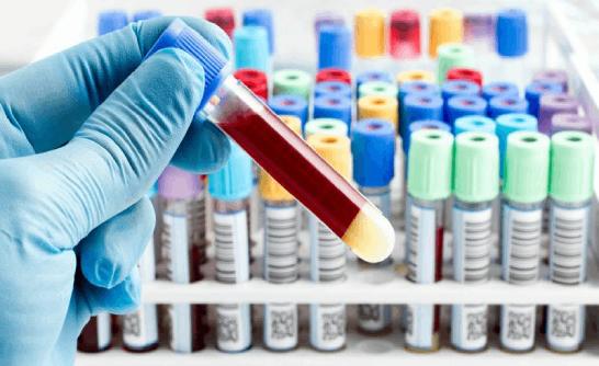 Phương pháp sinh thiết lỏng trong chẩn đoán ung thư | DNA Medical Technology