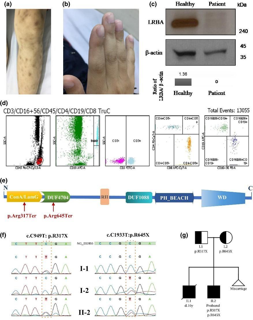 Hình ảnh minh họa trình bày lâm sàng, phân tích miễn dịch và di truyền của bệnh nhân